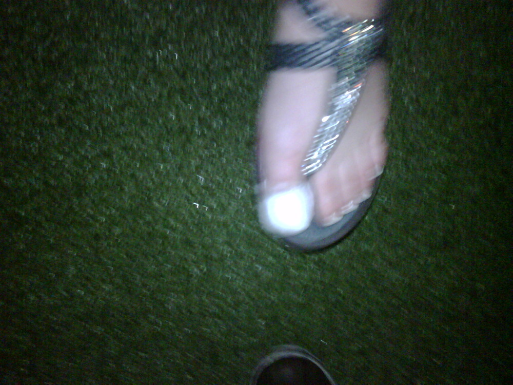 According to the rockstar, losing your Blackberry is worse than this ( a broken toe ). You decide…